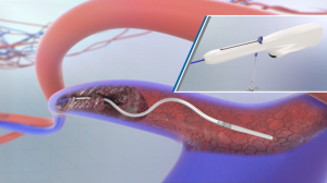 Watch CLEANER & OptionELITE for DVT Treatment Video